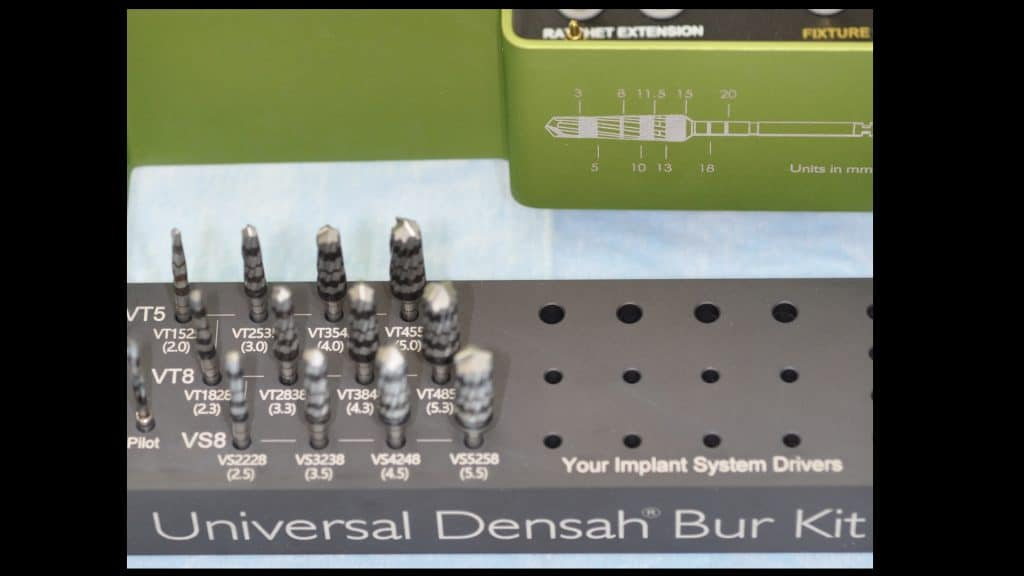 Sinus Floor Elevation And Implant Placement : Crestal sinusfloor elevation with densah burs medical bone